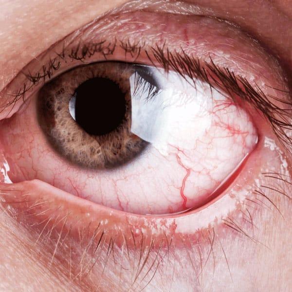 Suche oko z objawami tj. podrażnienie, zaczerwienienie, kłucie, pieczenie